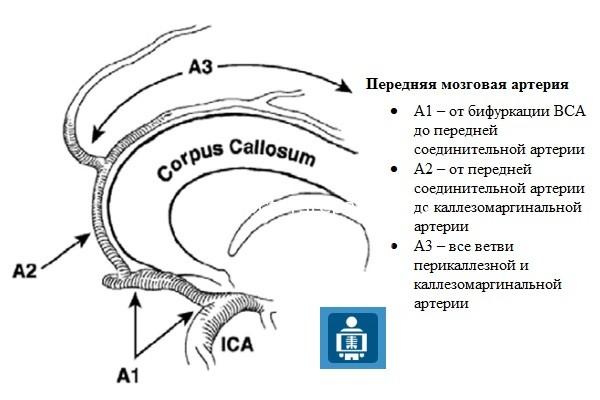 Передняя мозговая артерия (ПМА)