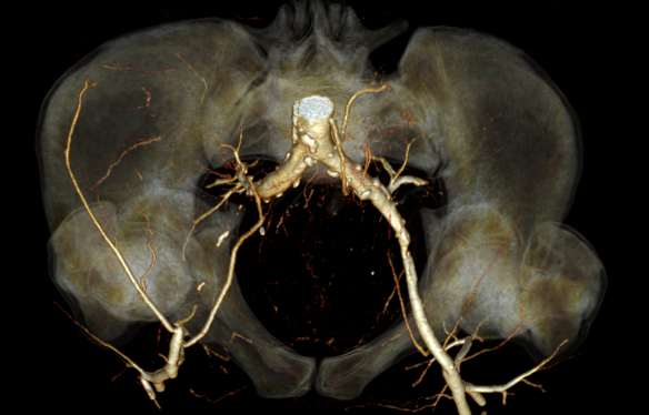 окклюзия наружной подвздошной артерии