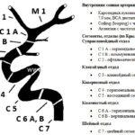 Сегменты БЦА (брахиоцефальных артерий)