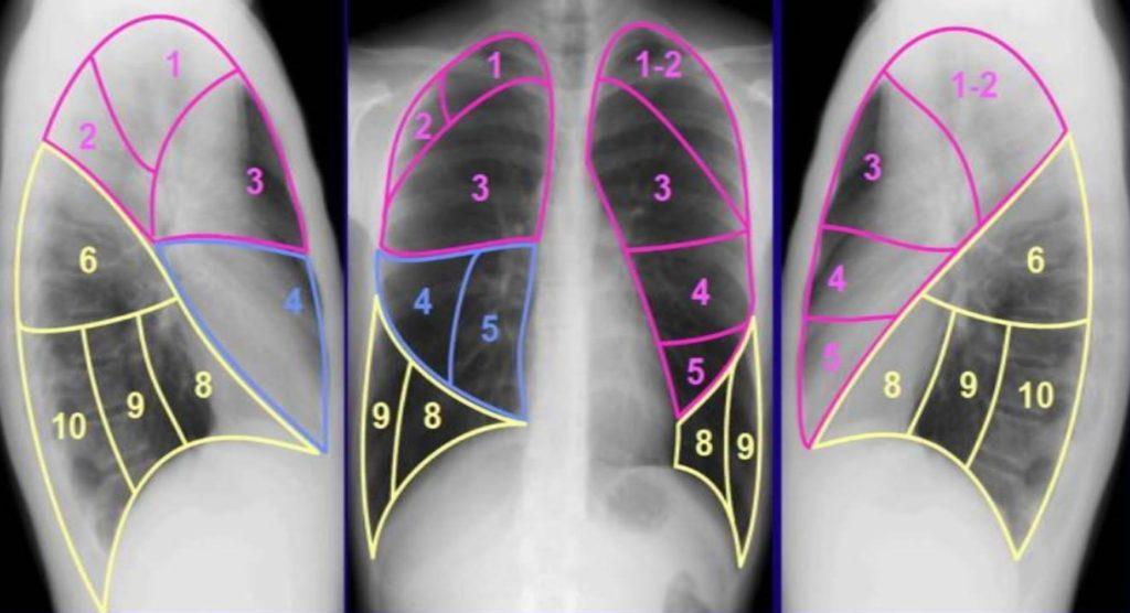 сегменты лёгких рентгенограмма