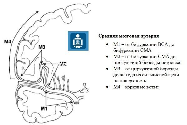 Средняя мозговая артерия (СМА)
